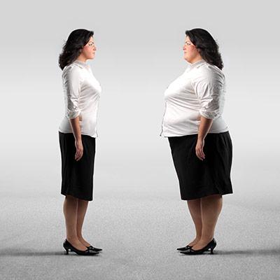 Woman considering weightloss surgery