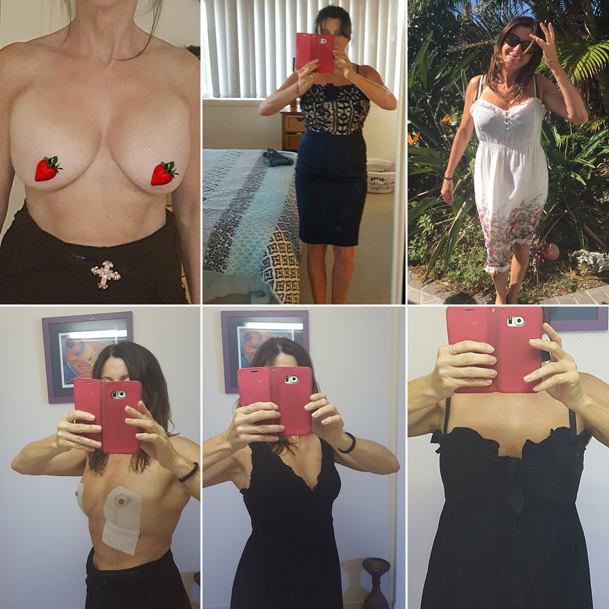 Jen's breast implant removal - before & after