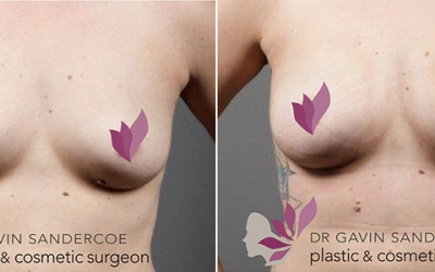 Recently had fat transfer to the breasts with Dr Gavin Sandercoe