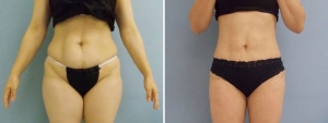liposculpture liposuction