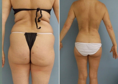 Liposculpture - before & after