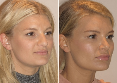 Chloe's Rhinoplasty - Before & After