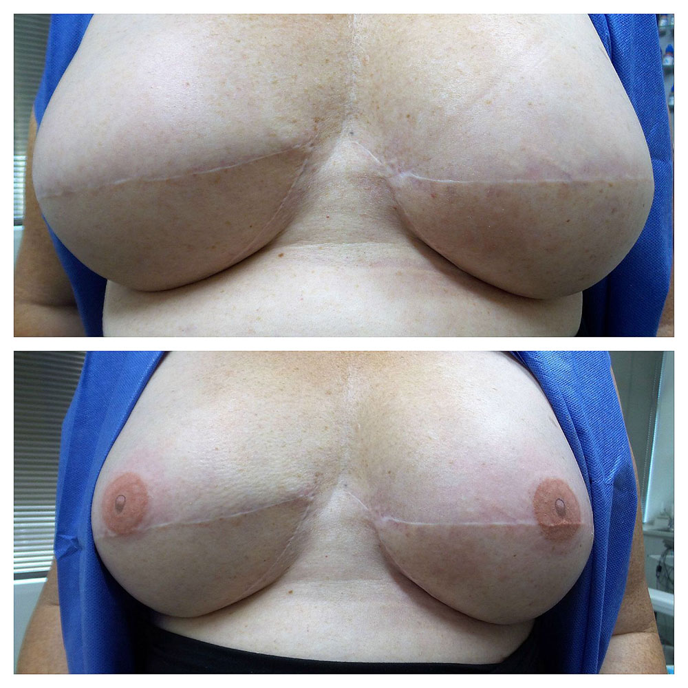 Nipple Areolar Reconstruction