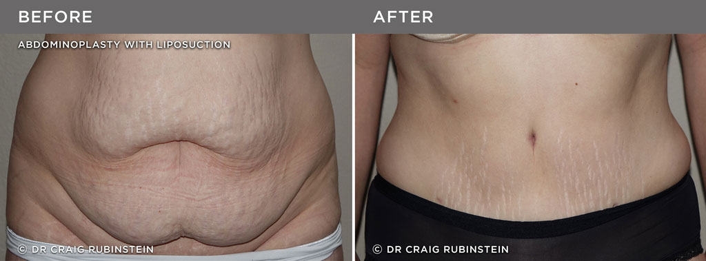 Shae's Tummy Tuck - Before & After