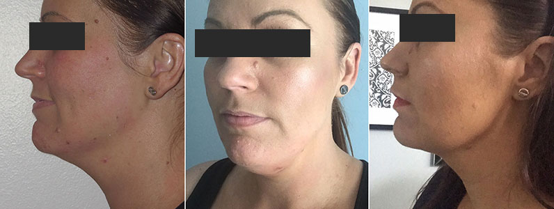 Belkyra is the latest contouring treatment perfect for getting rid of double chins