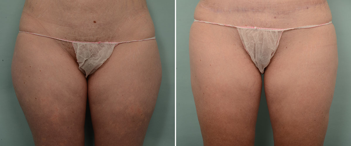 Dr Patrick Briggs - liposuction