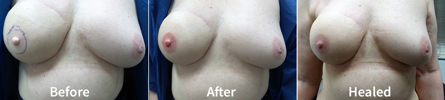 Nipple Areolar Reconstruction - before & after