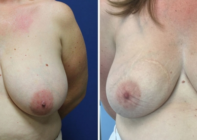 Breast Asymmetry Correction by Dr Damian Marucci