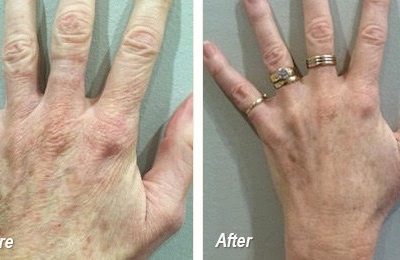 MDerma - before & after