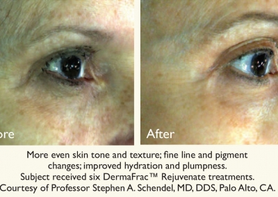 DermaFrac - before & after