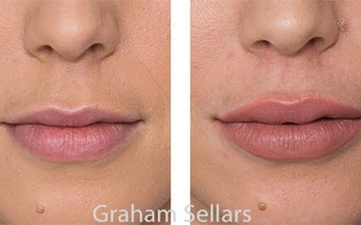Dermal Fillers – Where, why, who, how?