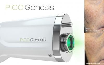 Laser Skin Rejuvenation with Cutera PICO Genesis