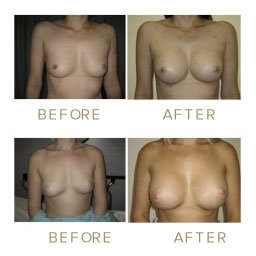 Breast Augmentation - before & after