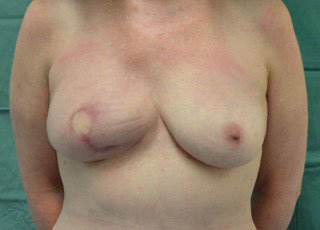 Farhadieh - Breast Reconstruction