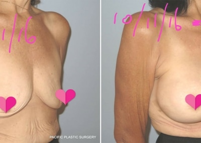 Breast Augmentation by Dr James Gaffield
