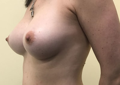 Breast Augmentation by Dr Rohit Kumar
