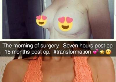 Breast Augmentation by Dr Michael Miroshnik
