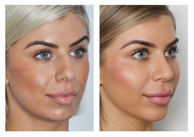Dr William Mooney Rhinoplasty