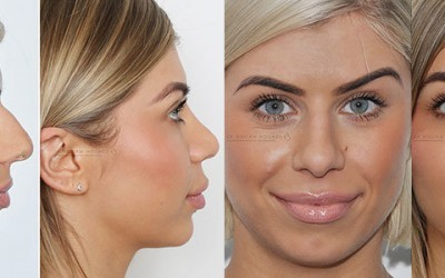 Nose Surgery Success – Danielle's Rhinoplasty