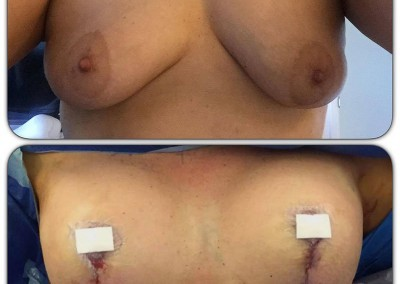 Breast Augmentation by Dr Pouria Moradi