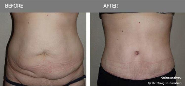 Nadia's Abdominoplasty - before & after