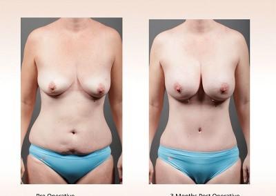 Breast Augmentation by Dr Gavin Sandercoe