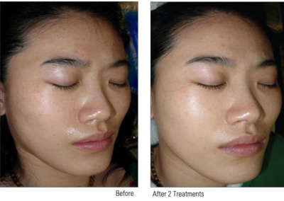 China Doll Facial treatment