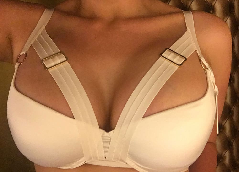 Jenna - breast augmentation & lift