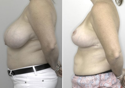 Dr Justin Perron - Breast Reduction