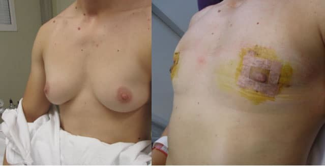 Transgender Reassignment Surgery
