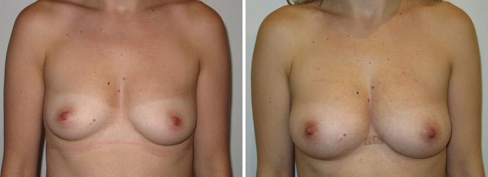 Dr Alan Kalus - fat transfer to the breasts