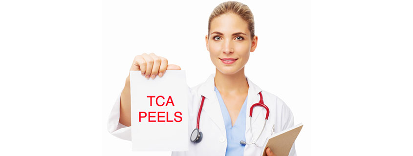 Let's talk about TCA peels…