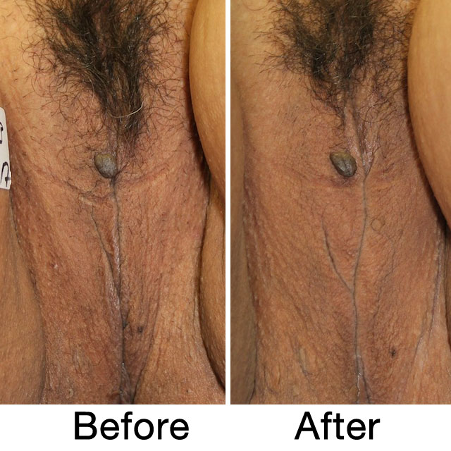 ThermiVA - vaginal rejuvenation before & after