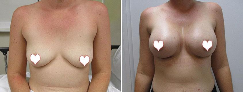 Breast Augmentation by Dr Mark Vucak