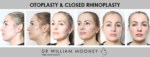 Yvonne's rhinoplasty and otoplasty