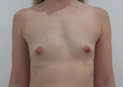 Patient eleven months post-op stage 1 front