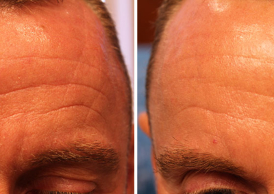 MDerma - forehead before & after