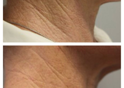 MDerma - neck before & after