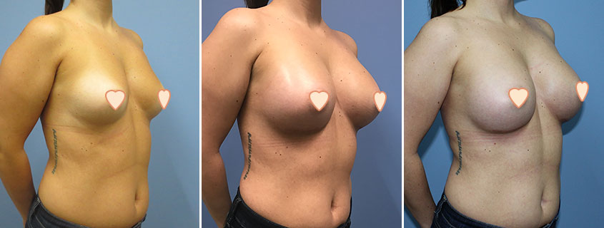 Dropping and Fluffing – What to expect of your breasts post augmentation