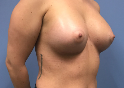 Breast Augmentation - 3 months