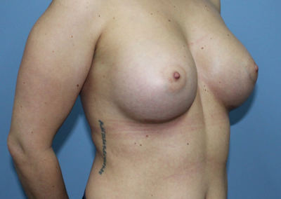Breast Augmentation - 6 months