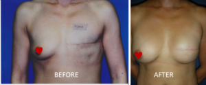 After breast mastectomy picture reconstruction