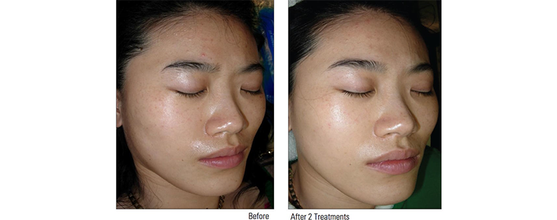 Smooth, Glowing and Younger Looking Skin with the China Doll Facial