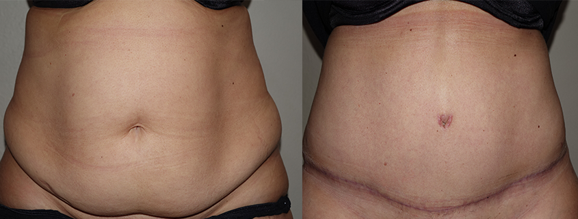 Tummy Tuck after Children, Olivia's Story – Abdominoplasty at Cosmetic Surgery for Women