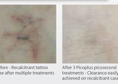 PicoPlus before & after