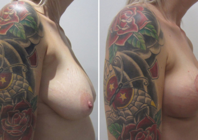 Breasts pre- and 6 weeks post surgery