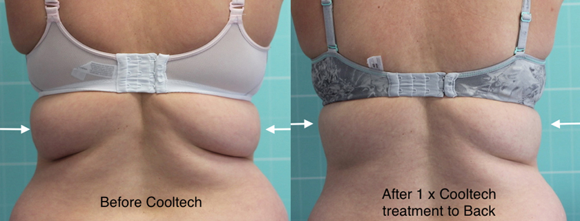 Cooltech – What are patients and practitioners saying about this fat freezing body contouring device?