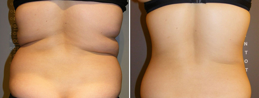 Why enCurve could be your body contouring solution