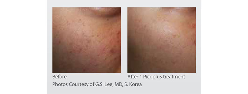 Dr Glen Calderhead on skin rejuvenation with the PICOPLUS