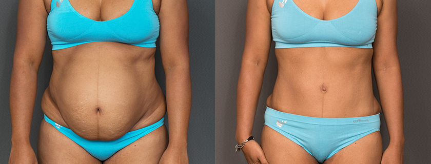 Functional abdominoplasty – when a tummy tuck is more than just about aesthetics…